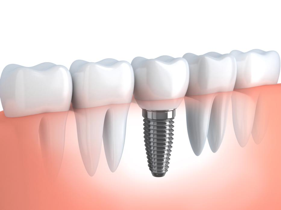 What are Dental Implants Made Of | Montrose CO