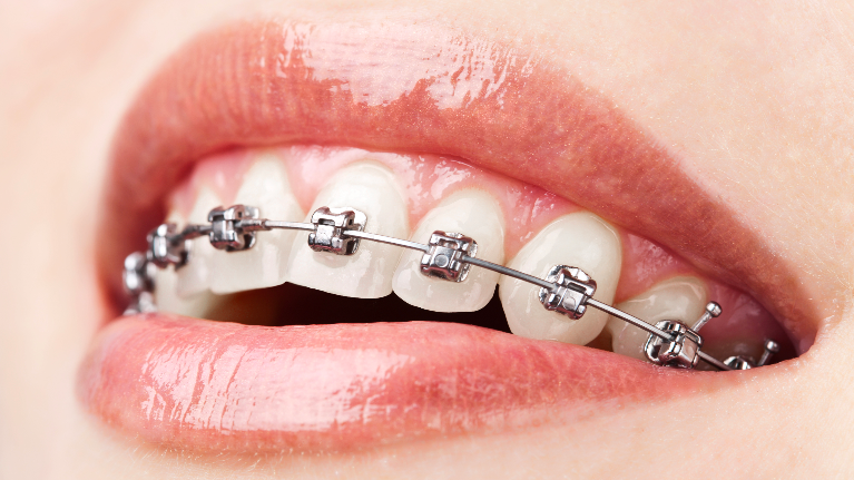 dentist montrose | six month braces montrose