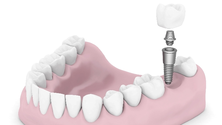 Dental Implants | Montrose CO