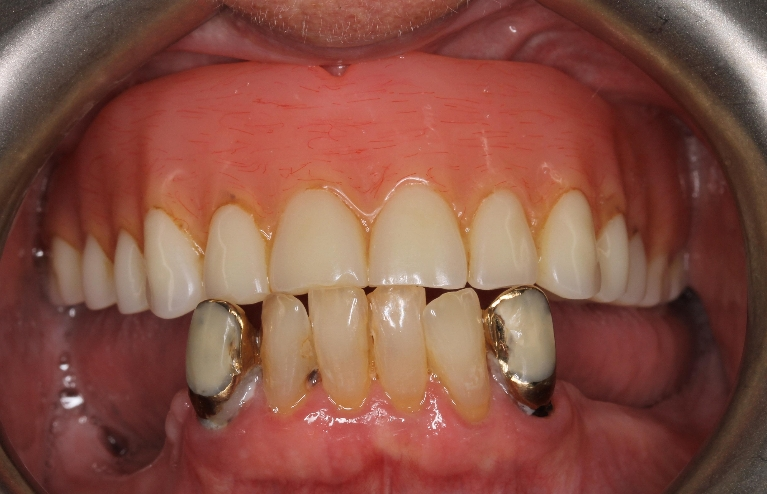 natural looking dentures montrose | 81401 dentist