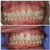 Six-Month-Cosmetic-Braces-Before-Image