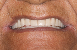 Beautiful-Natural-Looking-Dentures-After-Image
