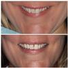 Six-Month-Cosmetic-Braces-After-Image