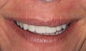 Dental-Crowns-Really-Make-A-Difference-After-Image