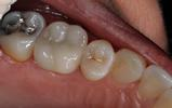 CEREC-Same-Day-Crowns-After-Image