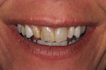 Dental-Crowns-Really-Make-A-Difference-Before-Image