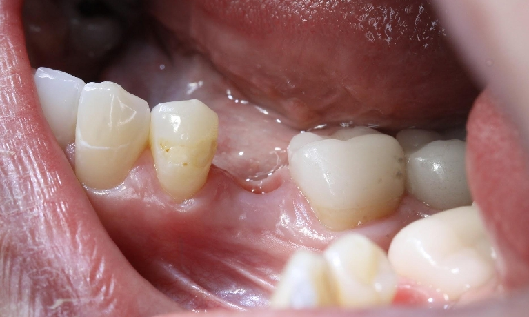 Replacing-Missing-Teeth-With-A-Dental-Implant-Before-Image