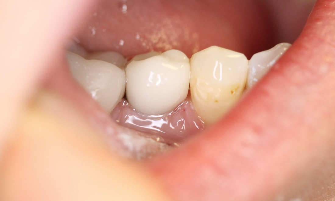 Replacing Missing Teeth With A Dental Implant